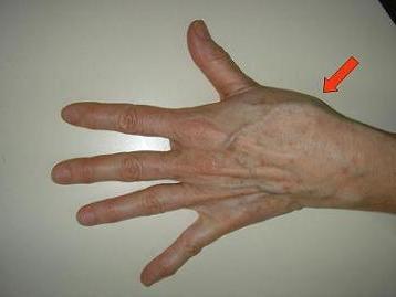 a mutatóujj ízületének fájdalma teraflex ízületek kezelésére szolgáló készítmények