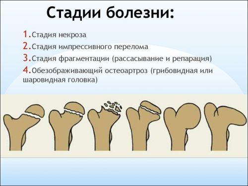 mi a teendő, ha a csípőízületek fájnak)