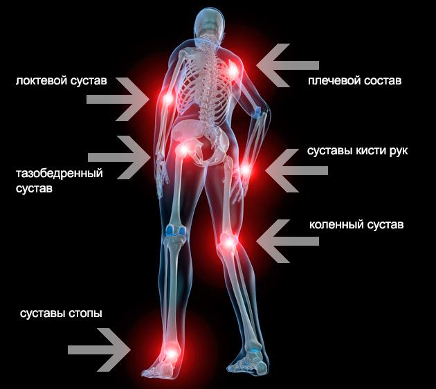 térd gonartritisz 2 fokos kezelése tartós fájdalom a lábak ízületeiben