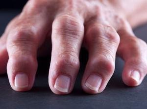 a kis ujj ízülete fáj, ha meghajlik ízületi fájdalom tart