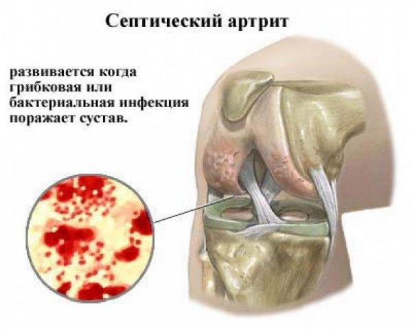intramuszkuláris térdfájdalom)