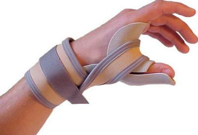 krém nyaki osteochondrozis kezelésére