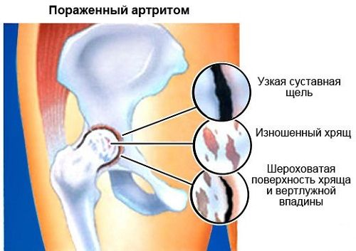 ízületi gyulladás a karon közös kezelés stroke után