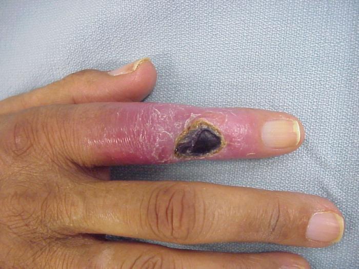 a kis ujj ízülete fáj, ha meghajlik az ízületi fájdalmakat orvos orvos kezeli